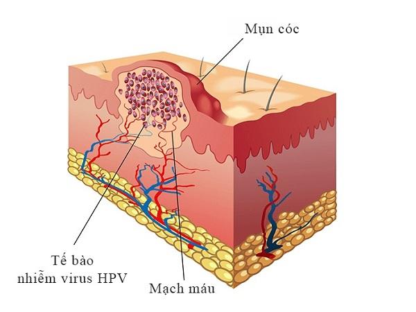 Mụn cơm (hay mụn cóc) do virut HPV gây nên