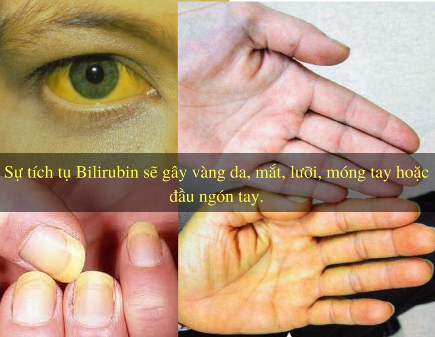 Cảnh giác với dấu hiệu vàng da