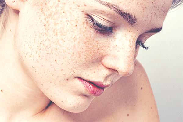 Các bệnh sạm da khu trú