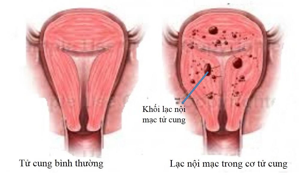 Lạc nội mạc tử cung có nguy hiểm?