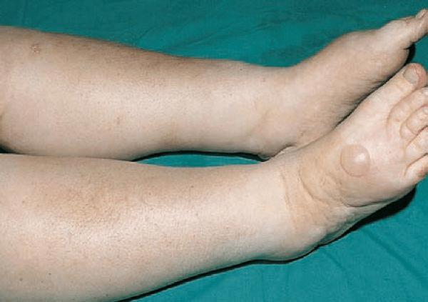 Hội chứng thận hư có khó trị?