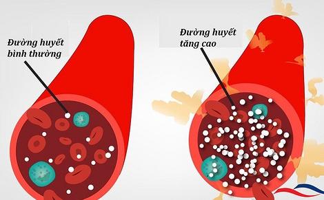 Khi đường huyết không ổn định