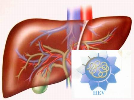 Bệnh viêm gan E nguy hiểm thế nào?
