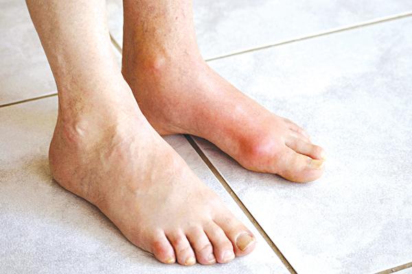 Chớ chủ quan với bệnh gout