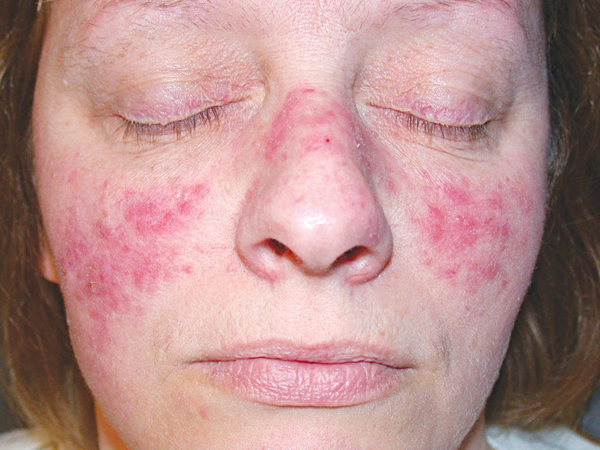 Mẹ bầu mắc lupus ban đỏ dễ gặp nguy cả mẹ lẫn con