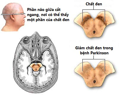 Giảm nhẹ ảnh hưởng của bệnh Parkinson