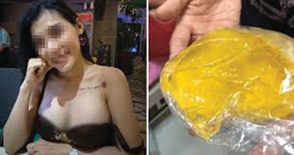 Những chuyện bi hài mang tên túi ngực silicon