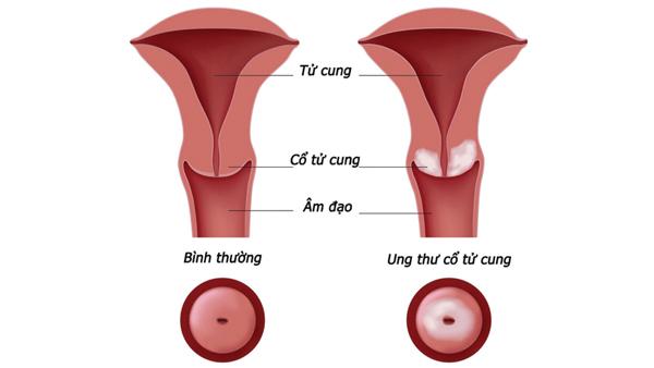 5 bệnh ở tử cung dẫn đến vô sinh