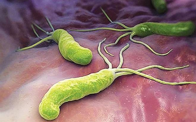 Vi khuẩn HP không chỉ gây bệnh ở dạ dày