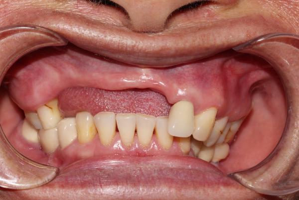 Hậu quả nghiêm trọng khi mất răng?