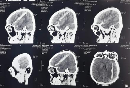Thương tâm: Bé trai 14 tuổi bị vỡ nhãn cầu, vết thương xuyên sọ bởi súng tự chế dùng để bắn chuột
