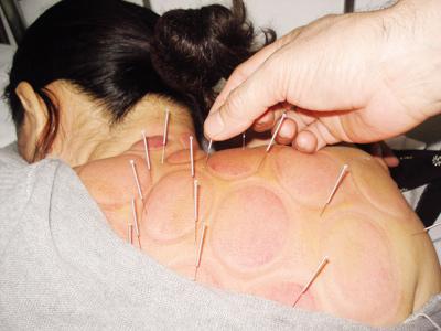 Phương pháp điều trị hội chứng cổ - vai - cánh tay 1