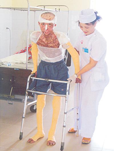 Điều trị di chứng và phục hồi chức năng do bỏng 1
