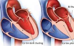 Viêm cơ tim sau tiêm vaccine COVID-19 có đáng ngại?