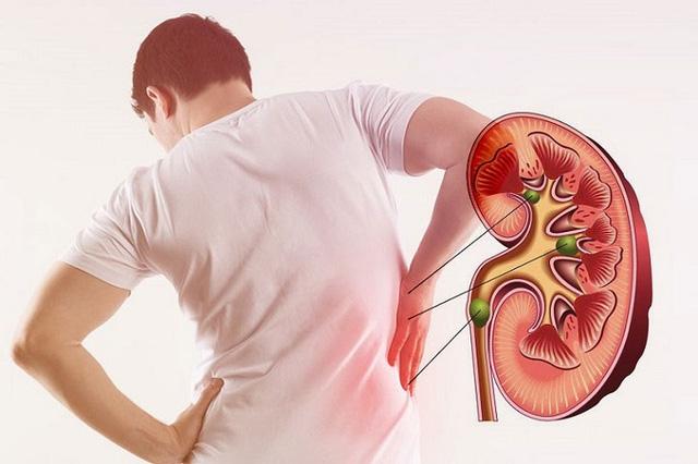 Hút thuốc lá sẽ tàn phá các mạch máu, làm giảm lưu lượng máu đến thận của bạn.