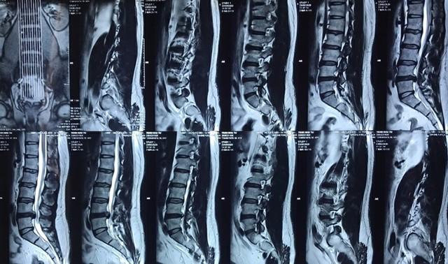 Hẹp ống sống - dấu hiệu, nguyên nhân, phương pháp chẩn đoán - Ảnh 3.