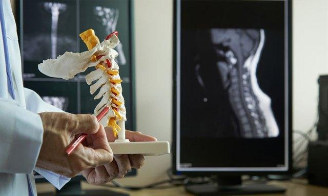 Tiêm steroid điều trị đau lưng – tốt hay xấu? - Ảnh 2.