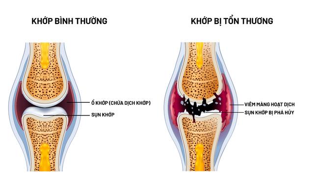 Khám phá mới về nguyên nhân và cách cải thiện bệnh xương khớp - Ảnh 2.
