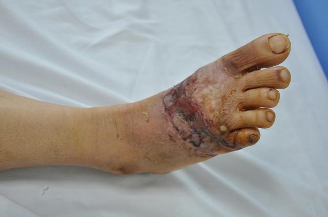 Phẫu thuật, nuôi sống thành công bàn chân bị đứt gần rời do tai nạn lao động - Ảnh 2.