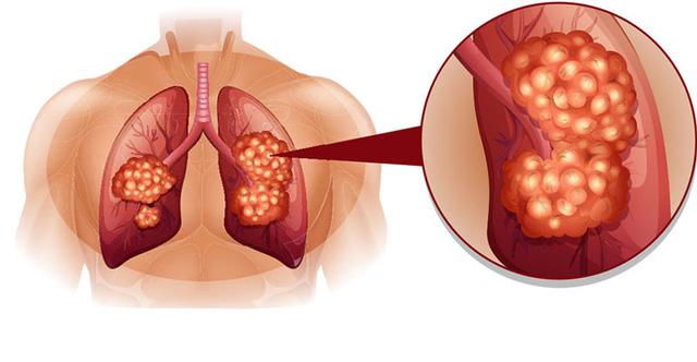 Giúp bạn đương đầu với ung thư phổi - Ảnh 1.