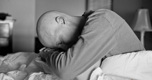 Tác dụng phụ có thể gặp trong và sau xạ trị ung thư - Ảnh 2.