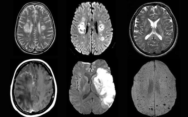 Mắc COVID-19 và bệnh mạch máu não - Ảnh 2.