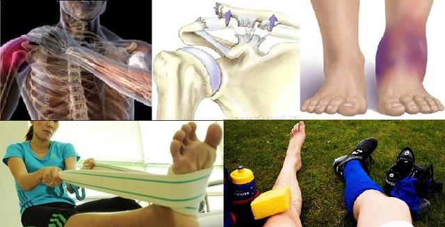 Tập luyện thể thao sau chấn thương dễ hay khó - Ảnh 1.
