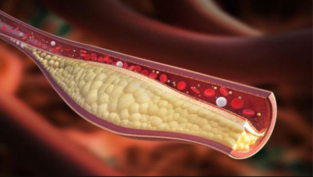 Mỡ máu cao nhiều năm khiến cơ thể đối mặt với tim mạch, huyết áp, đột quỵ - Ảnh 2.