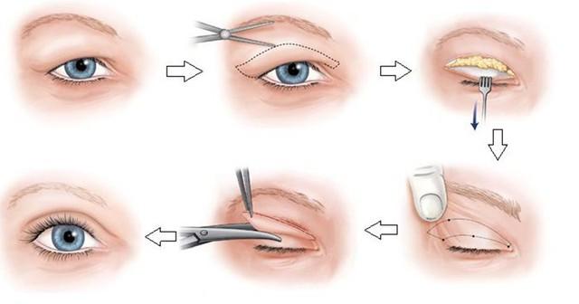 Phẫu thuật cắt da thừa mí mắt: Bí kíp trả lại nét thanh xuân? - Ảnh 2.