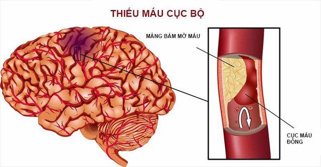 Cách xử trí các ca bệnh đột quỵ cấp liên quan tới COVID-19 - Ảnh 1.