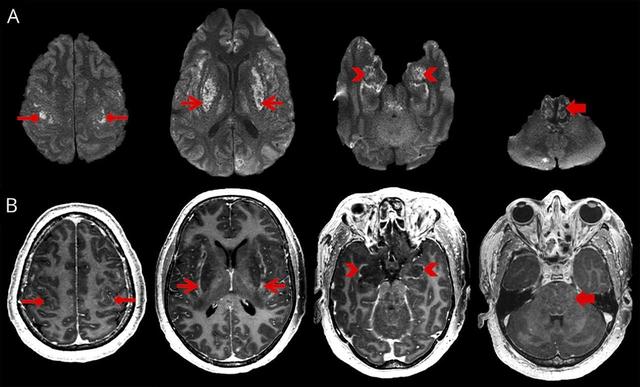 Cách xử trí các ca bệnh đột quỵ cấp liên quan tới COVID-19 - Ảnh 4.