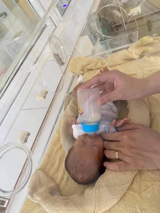 Trẻ sinh non bị teo ruột bẩm sinh, suy hô hấp được cứu sống thành công sau 50 ngày điều trị - Ảnh 4.