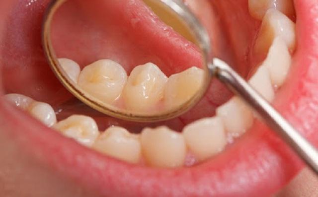 Yếu tố nguy cơ gây ung thư miệng - Ảnh 4.
