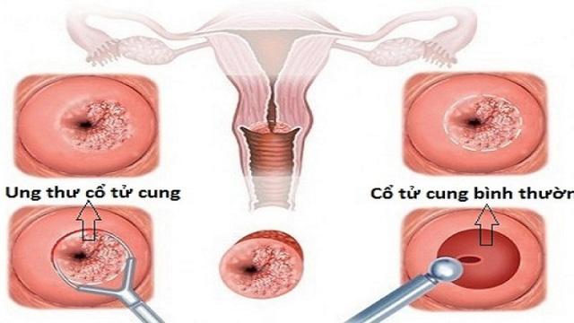 Những điều cần lưu ý khi tầm soát ung thư cổ tử cung - Ảnh 2.