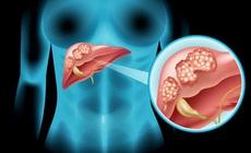 Viêm gan virus B và dự phòng ung thư gan