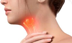 Các dạng viêm thanh quản thường gặp và cách xử trí