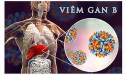 Viêm gan B: Nguyên nhân, triệu chứng và cách phòng bệnh hiệu quả