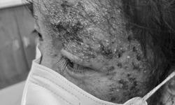 Dùng thuốc trị nấm sai cách, bé gái 8 tuổi bị tổn thương da nghiêm trọng