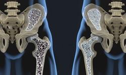 Thuốc điều trị loãng xương, những lưu ý khi sử dụng