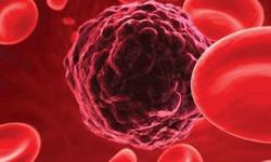 Phát hiện sớm ung thư máu để có kết quả điều trị cao