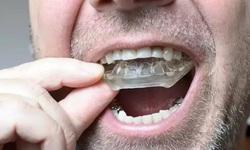 Nghiến răng, bệnh lý cần điều trị để tránh hậu quả đáng tiếc