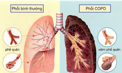 Người bệnh phổi tắc nghẽn mạn tính cần theo dõi thế nào sau tiêm vaccine COVID-19?