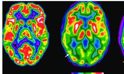 Suy giảm nhận thức nhẹ và hình ảnh học não