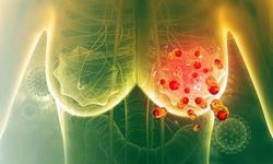 Phương pháp mới điều trị ung thư vú di căn