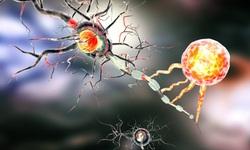 Nhắm vào tế bào gốc có thể ngăn ngừa ung thư não tái phát
