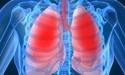 Vì sao mắc bệnh phổi kẽ?