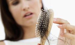 Điều trị rụng tóc do bệnh nấm tóc