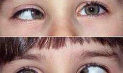 Lác mắt có chữa được không?