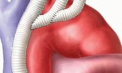 Sử dụng kỹ thuật Hybrid điều trị bệnh tim phức tạp