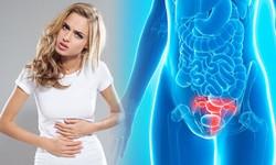 7 dấu hiệu cảnh báo ung thư buồng trứng